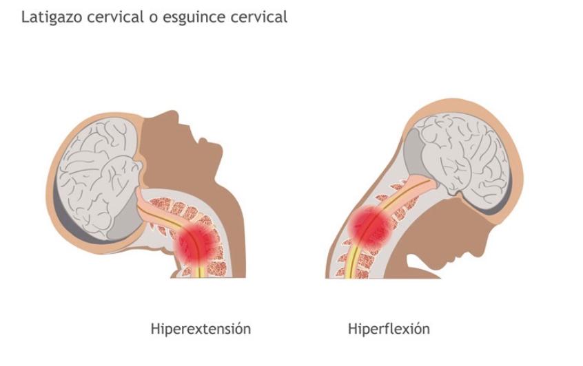 mareos de las cervicales sintomas